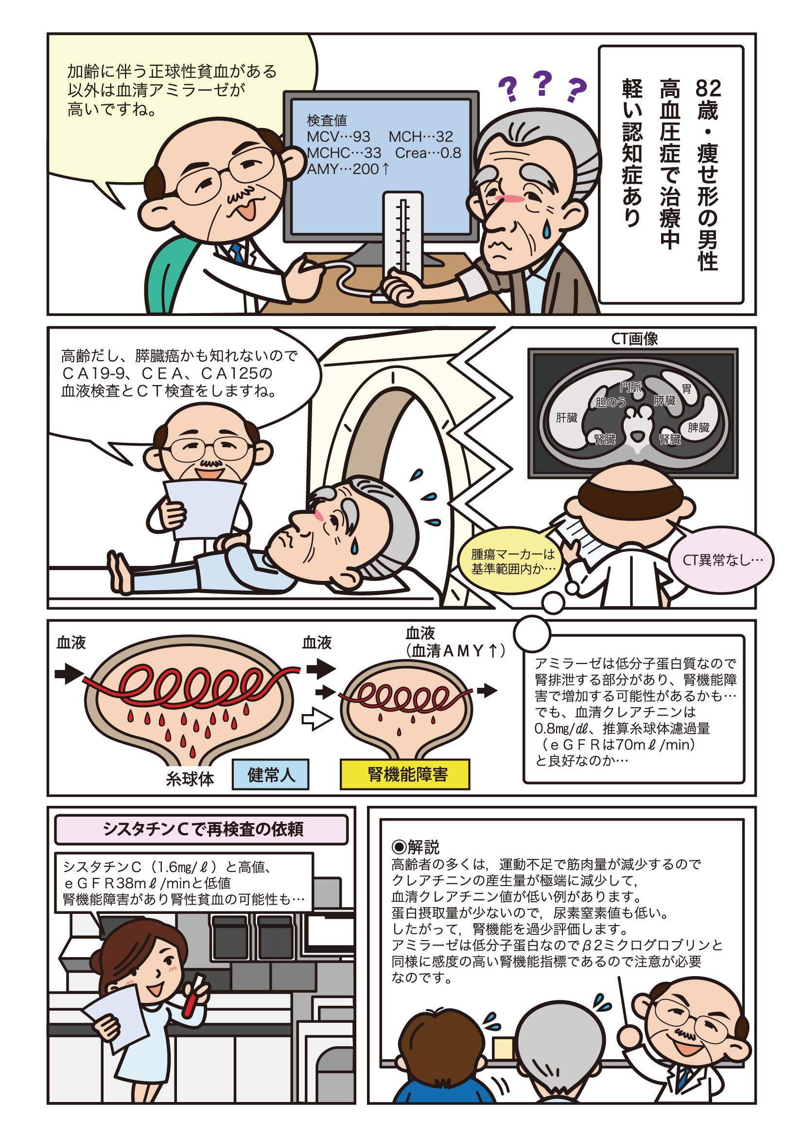 第2話 腎機能評価の落とし穴