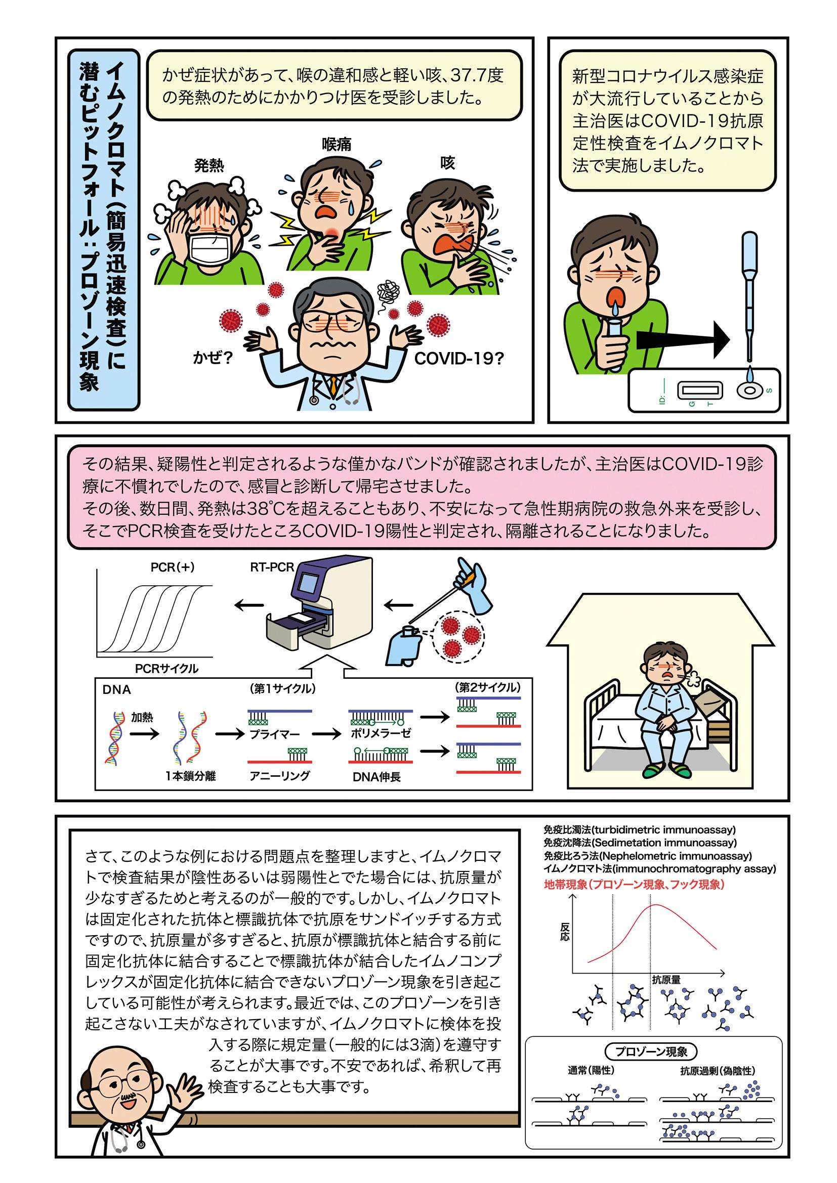 第13話 イムノクロマト(簡易迅速検査)に潜むピットフォール:プロゾーン現象