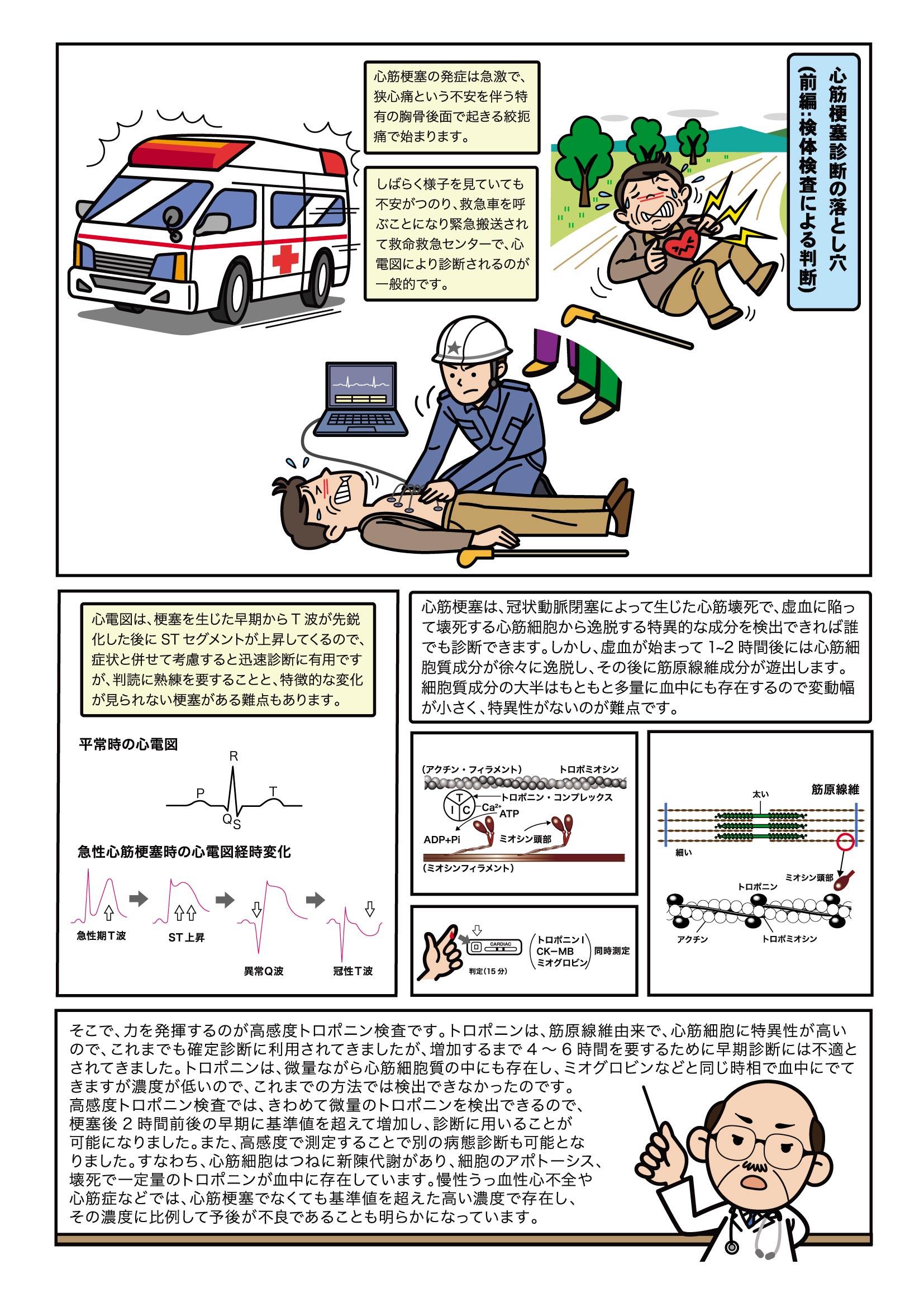 第9話 心筋梗塞診断の落とし穴(前編:検体検査による判断)